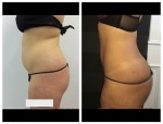 Abdomen, waist and lower back with fat graft to buttocks*