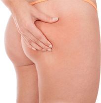 fat-grafting-transfer