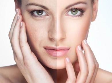 skin treatmets