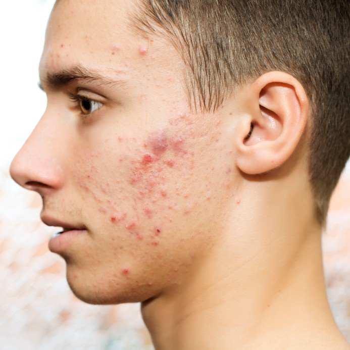 acne in men