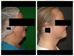 Vaser Liposuction for neck area - Dr Mike Comins