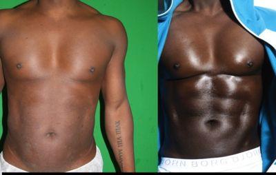 review tampa vaser liposuction mind