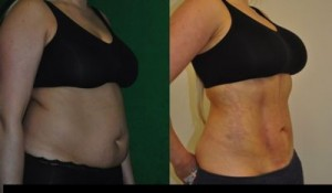 Vaser Liposuction London