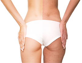 iStock_000013245785Large Fat Removal