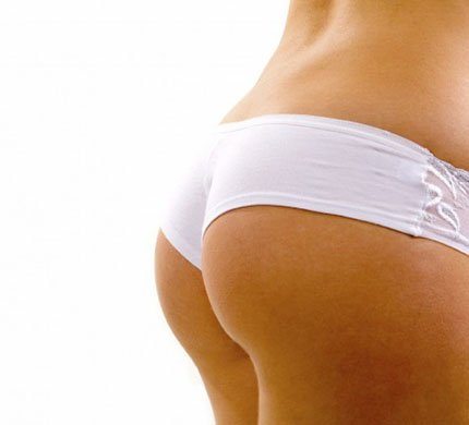 BUTTOCK LIPOSCULPTURE BUTTOCK LIPOSCULPTURE