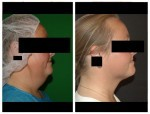 Vaser Liposuction for neck area - Dr Mike Comins