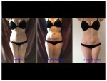 Vaser Liposculpture - award winning case study by Dr Mike Comins